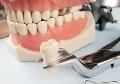 Без поломок: как ухаживать за зубными протезами?