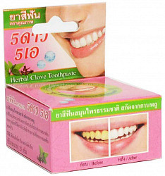 5 стар косметик зубная паста травяная отбеливающая экстракт листьев гуавы/гвоздика 25г