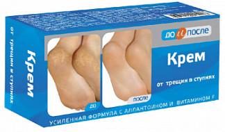 До и после крем для ног против трещин 150мл твинс тэк