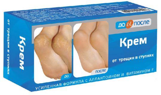 До и после крем для ног против трещин 150мл твинс тэк, фото №1