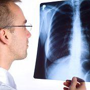 Когда нечем дышать: развитие вирусной пневмонии